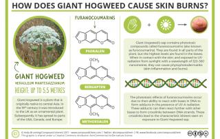 Giant Hogweed Skin Burns Chemistry